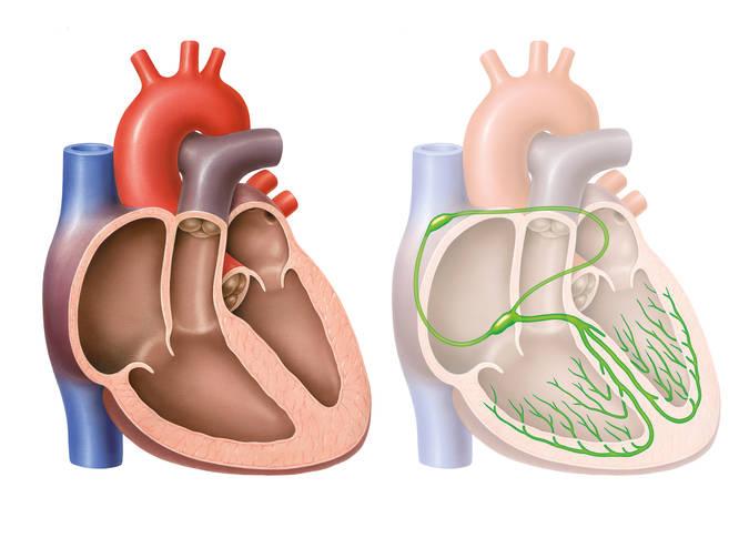 Pfeiffersche Stiftungen Schwachstelle Herzklappen